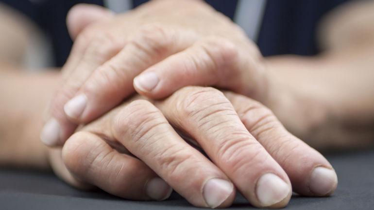 Rheumatoid Arthritis And Gum Disease