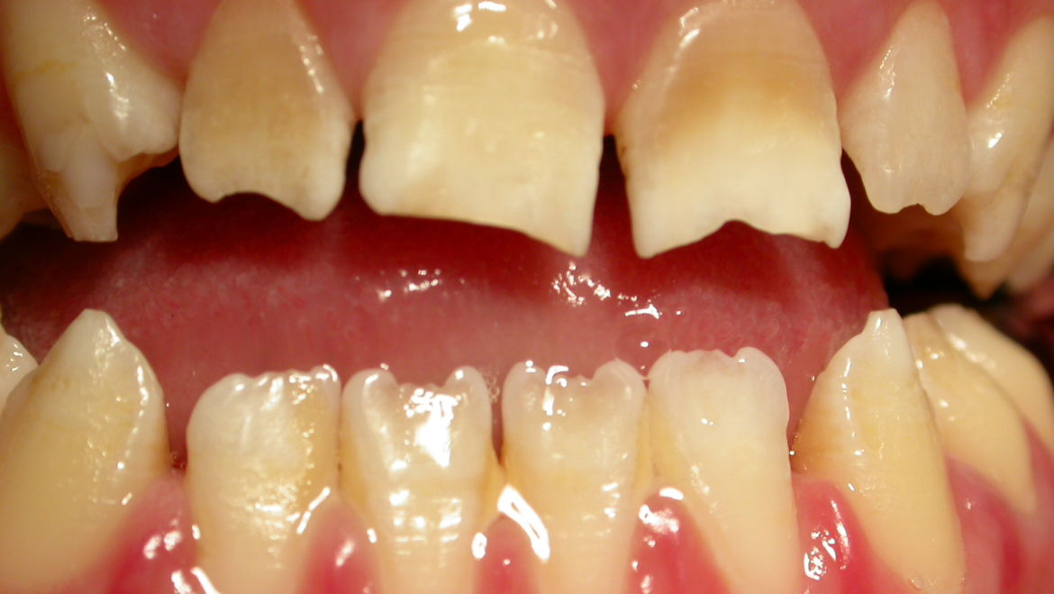 What is Dentinogenesis Imperfecta?