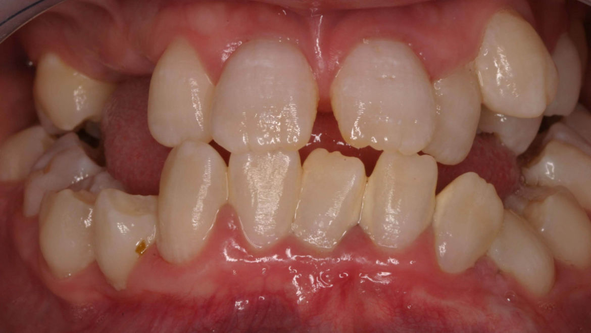 Hereditary Dentin Disorders
