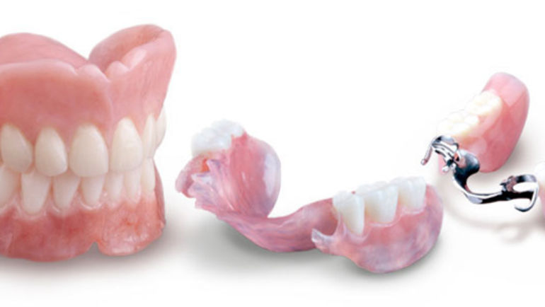 Dentures: What Are They?