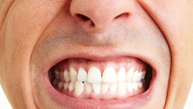 Bruxism: Clenching and Grinding Teeth