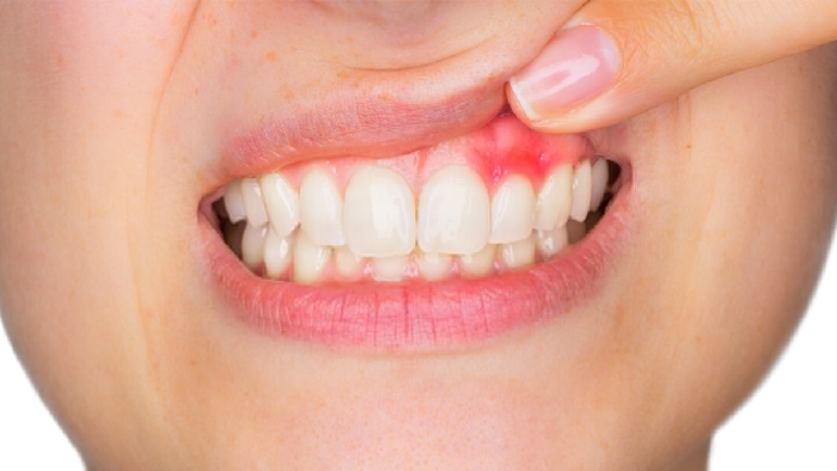 Gum Disease: Stages and Prevention