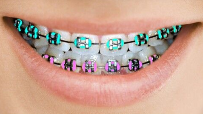 What Happens After Braces?