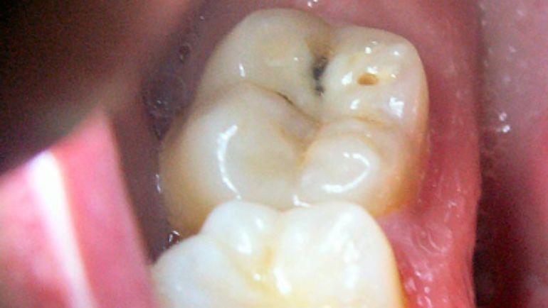 Cavities: Tips And Information