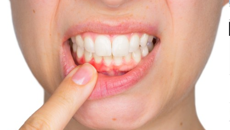 Receding Gums: What Is It?