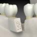 Bone Graft: What Is It?