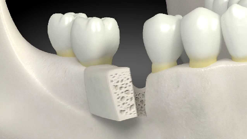 Bone Graft: What Is It?
