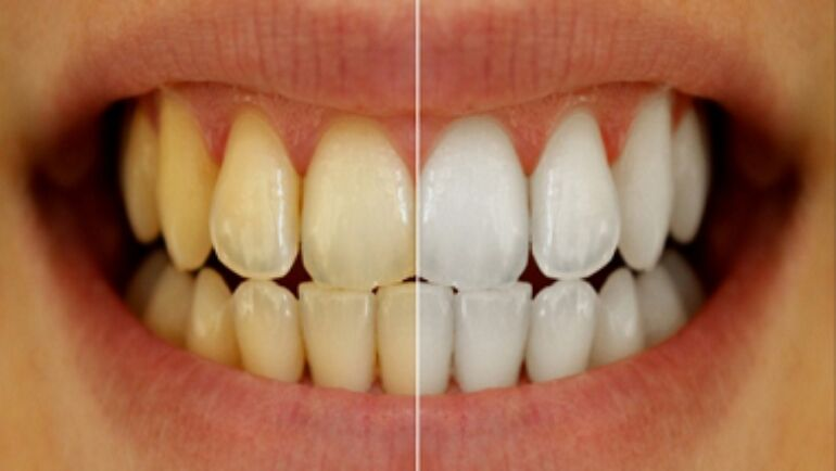 Yellow Teeth: What To Do