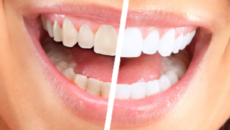 Tooth Discoloration: What Causes It?