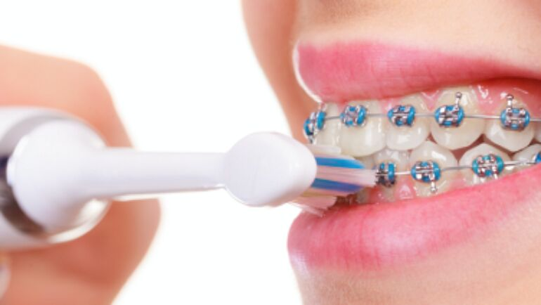 Electric Toothbrush: Are They Better?