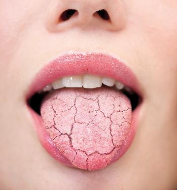 Xerostomia: Dry Mouth And Saliva
