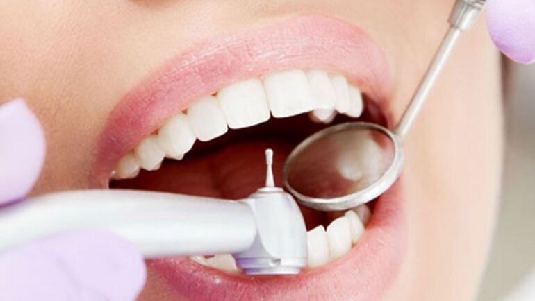 Most Common Treatments at the Dentist Office
