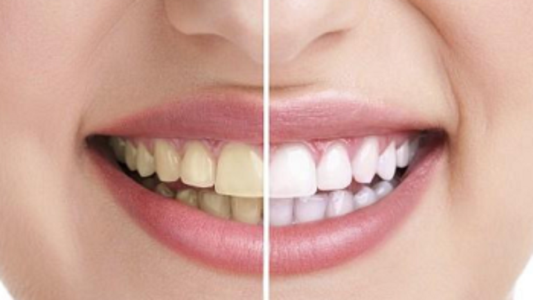 Yellow Teeth: What Triggers It?