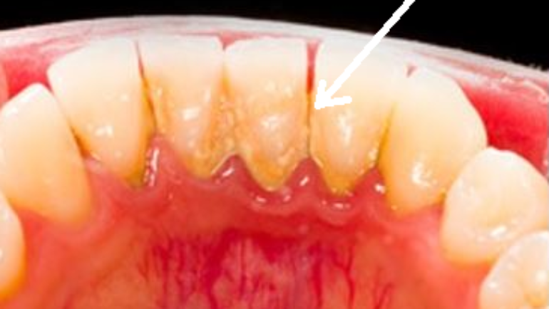 What Is Dental Calculus?