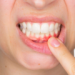 Inflamed Gums: What Causes Them?