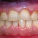 Dental Plaque: Why Is It Bad For Our Teeth?