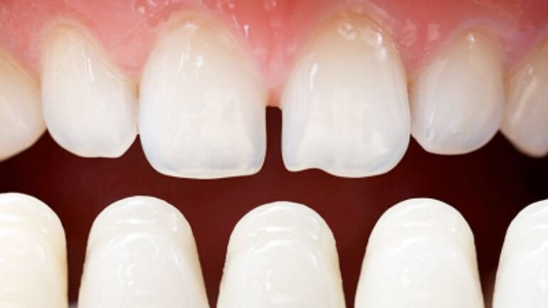 Which Procedure To Get? Crowns Or Veneers?