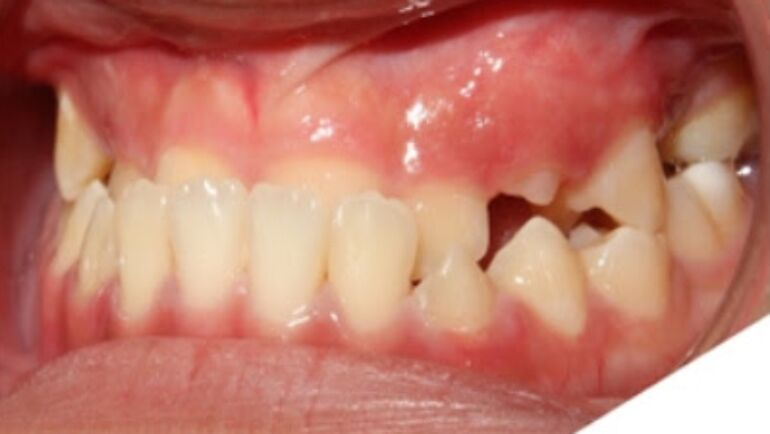 How Is A Crossbite Treated?