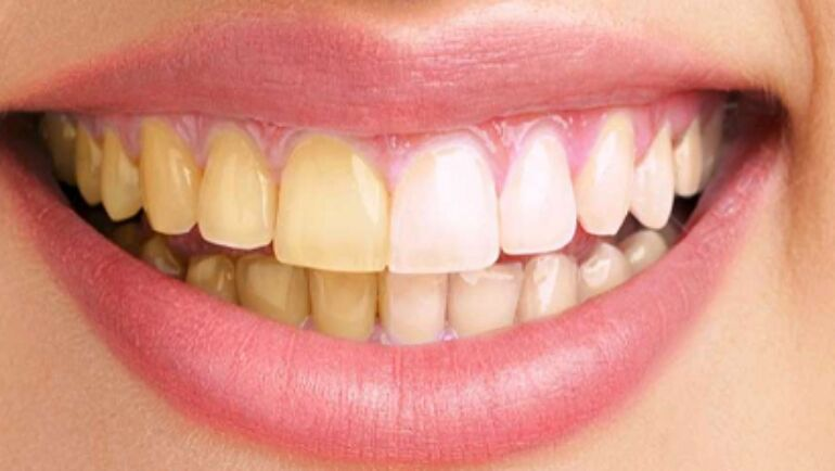 How To Achieve White Teeth