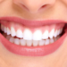 Gummy Smile: Is It Good or Bad?