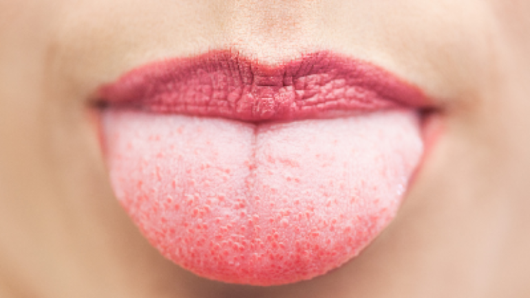 Tongue Scraping: Why It Is Important