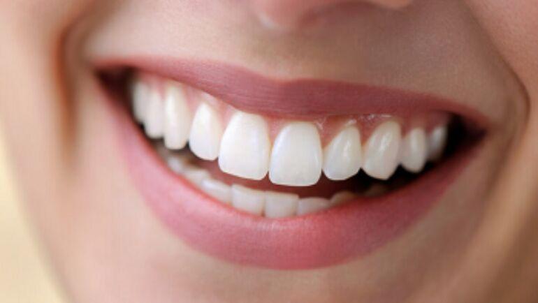 Tooth Enamel Erosion: Information