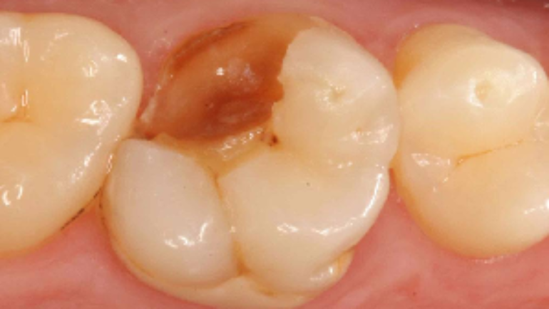 Tooth Cavities: Information & Tips