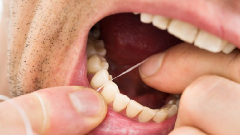 Flossing: Technique and Tips
