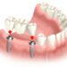 Why dental implants are the best option for replacing teeth