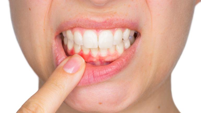 The best tips to avoid gingivitis