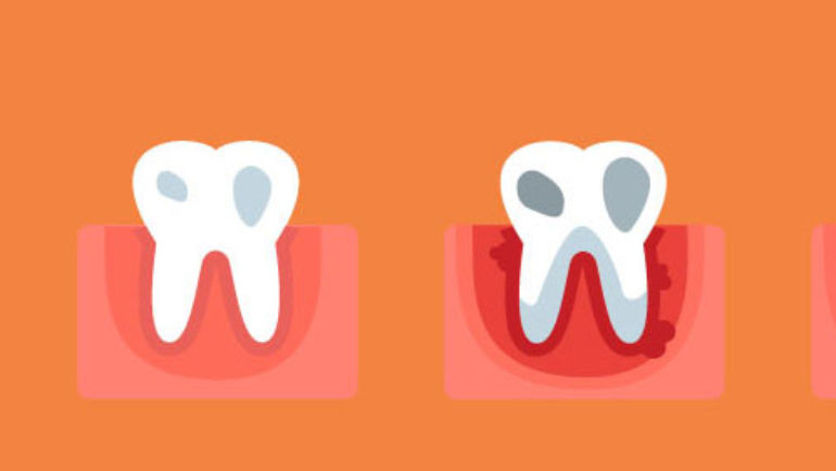 Learn how you can avoid gingivitis