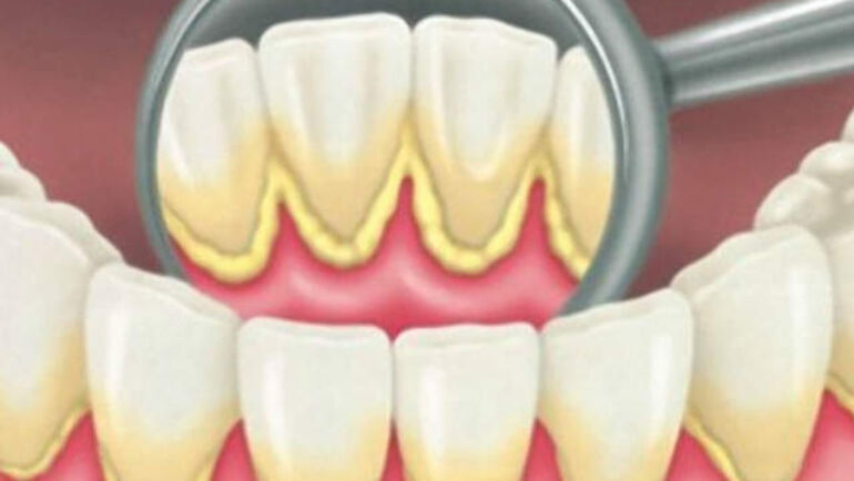 Cleaning plaque and tartar from your teeth