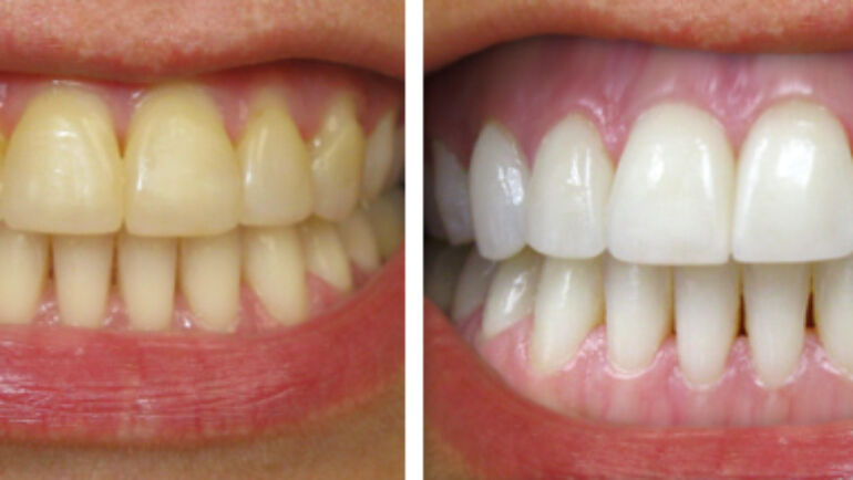 How to avoid staining your teeth
