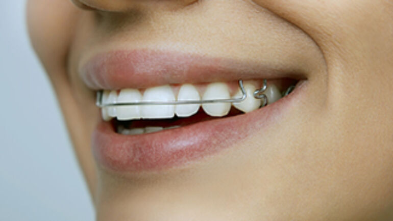 Things you can eat with orthodontics